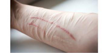 خون بازی،مروری بر پدیده آسیب به خود در دختران نوجوان