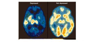 کشف تاثیر دوپامین در بروز افسردگی پس از زایمان