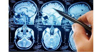 پیش بینی احتمال خودکشی با اسکن مغزی