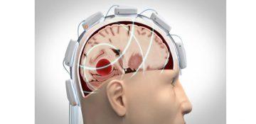 تشخیص آسیب های مغزی با کلاه مایکروویو