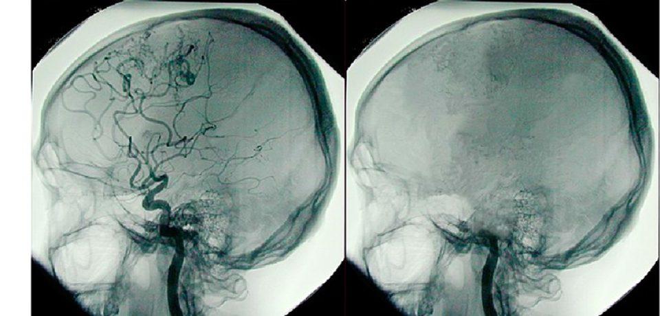 ثبت فعالیت مغز تا ۱۰ دقیقه پس از مرگ