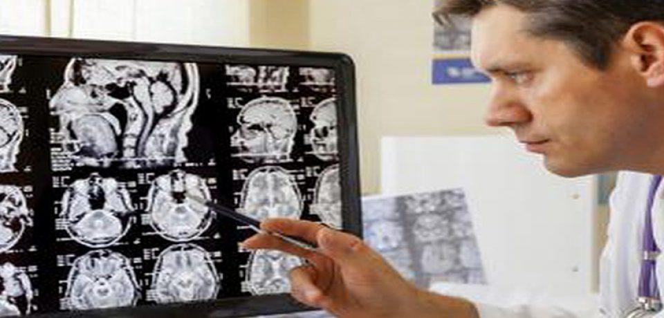 روش درمانی جدید در بیماران اسکیزوفرنی