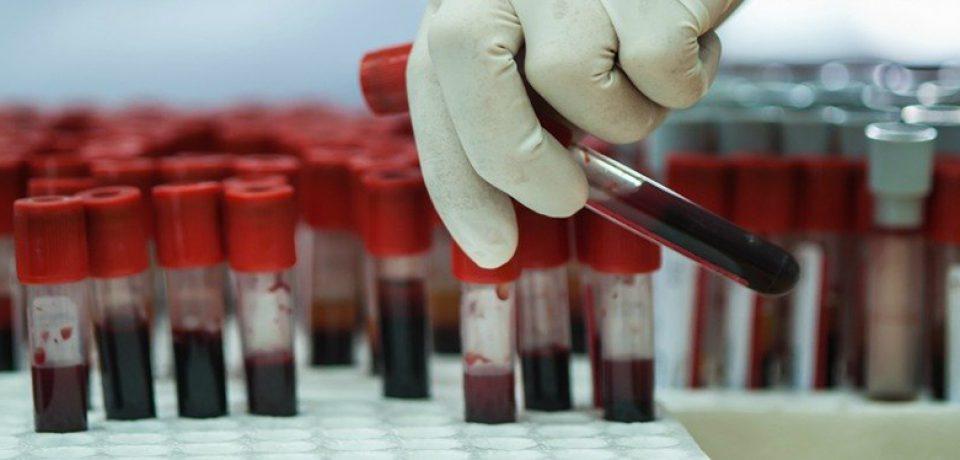 امکان تشخیص افسردگی و اسکیزوفرنی از طریق آزمایش خون