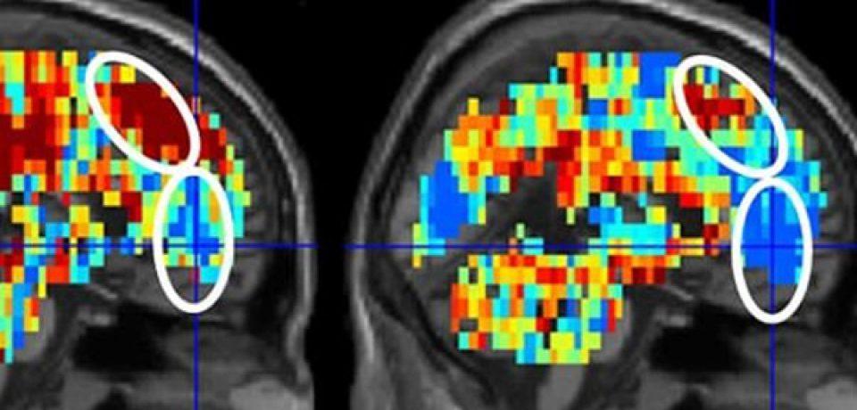 افکار مرتبط با خودکشی با اسکن مغز ردیابی شدند