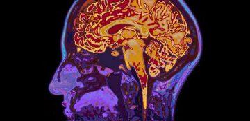 آیا ممکن است از شخص دیگری آلزایمر بگیرید ؟