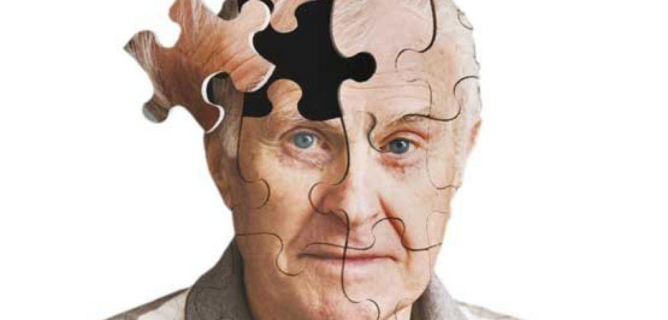 ۶ فاکتور موثر در پیشرفت آلزایمر