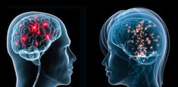 مغز زنان کوچکتر از مغز مردان است؟
