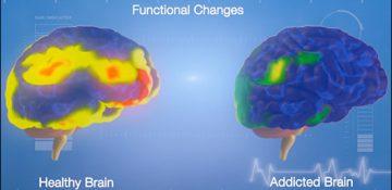 رابطه لذت بخشی موادمخدر با آسیب به مغز