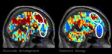افکار مرتبط با خودکشی با اسکن مغزی ردیابی شدند