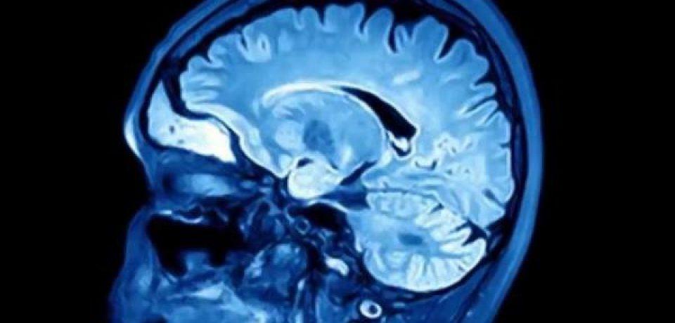 """نقش ویروس """"هرپس"""" در بیماری آلزایمر"""