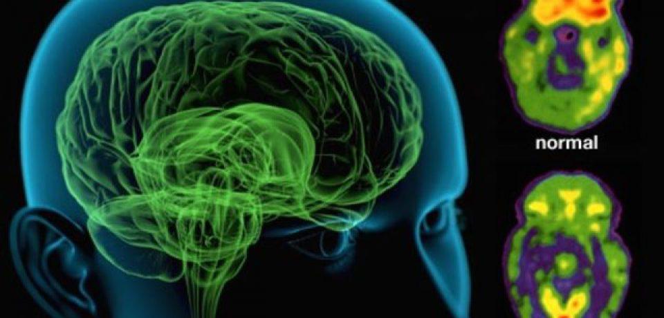 اسکیزوفرنها از نبوغ تا جنون