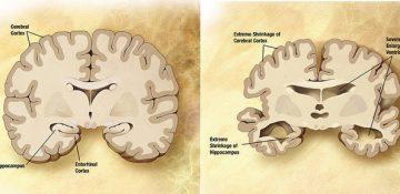 ارتباط میان بیماریهای مزمن چشم و آلزایمر