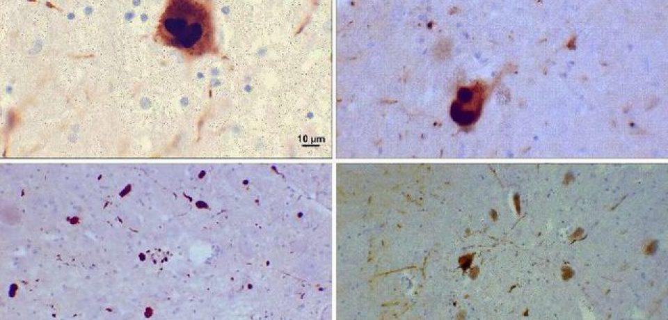حذف عامل اصلی بیماری پارکینسون با ژن درمانی!
