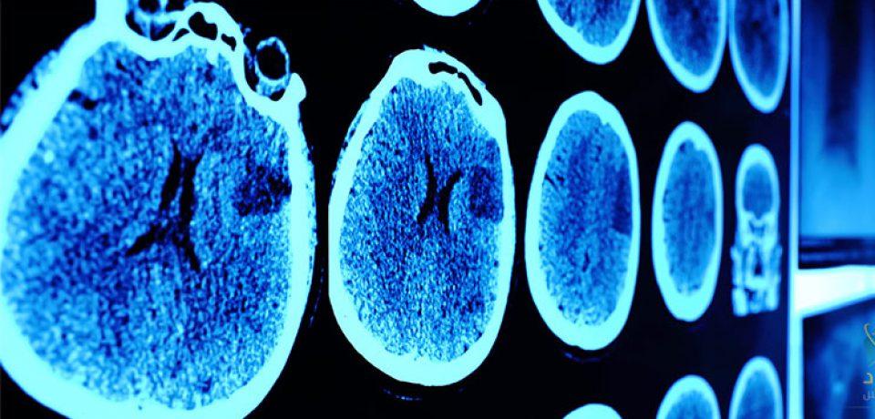 چه عواملی در پیری مغز دخیل هستند؟