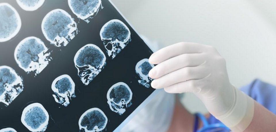 آلزایمر با ویروس تبخال مرتبط است