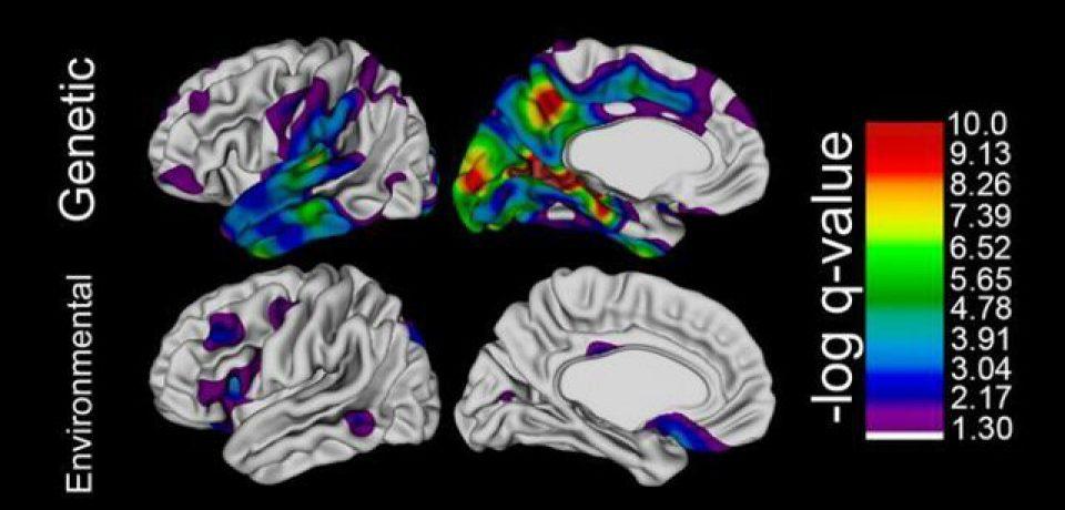 ژنتیک، اندازه مغز و میزان هوش را تحت تاثیر قرار میدهد