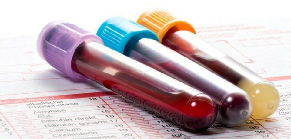 """تشخیص """"اختلال استرس پس از آسیب روانی"""" تنها با یک آزمایش خون!"""