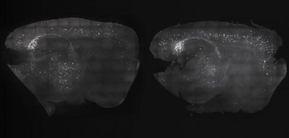 بهبود آلزایمر با کمک تحریک امواج مغزی