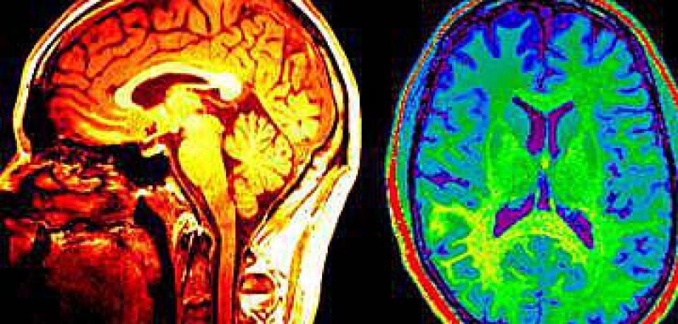 مغز میتواند در بزرگسالی نیز سلولهای مغزی جدید تولید کند