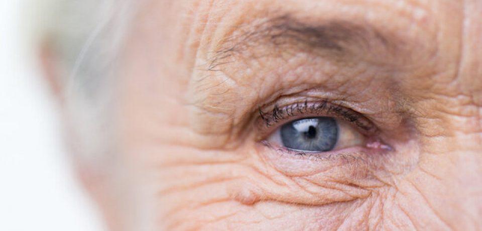 پیشبینی خطر بروز آلزایمر با بررسی مردمک چشم