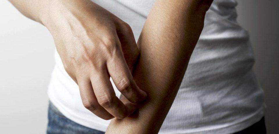 کشف ارتباط خارش پوست با اختلالات روان