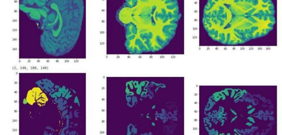 پیشبینی سطح هوش کودکان با MRI