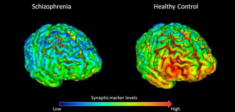 بررسی بهتر مغز بیماران اسکیزوفرنیک با روش تصویربرداری جدید