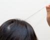 از علت تا درمان مبتلا به وسواس کندن مو(تریکوتیلومانیا)