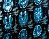"""""""کلید هوشیاری"""" در اعماق مغز شناسایی شد"""