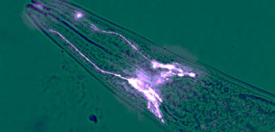 سلولهایی که از مغز در برابر آلزایمر محافظت میکنند