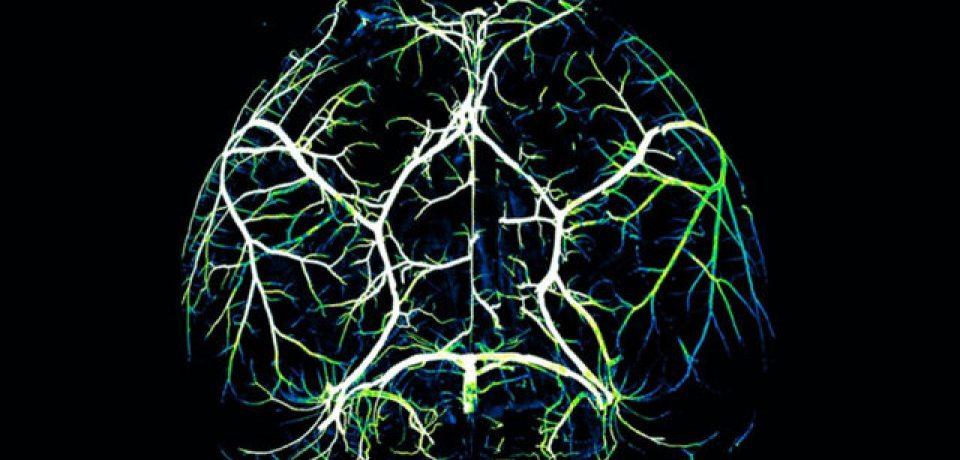 کشف مکانیسم مؤثر در مغز برایمبارزه باآلزایمر