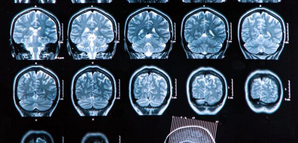 یک نوع جدید از اسکیزوفرنی کشف شد