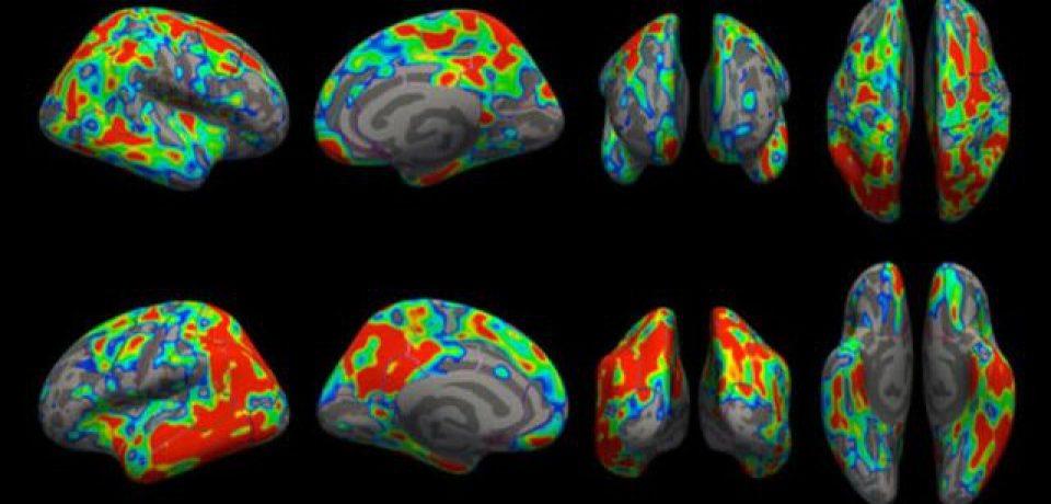 مشاهده میزان از بین رفتن سیناپسهای مغز در مراحل اولیه آلزایمر