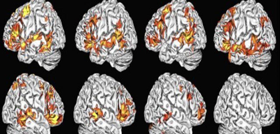 آیا پردازش زبانی کودکان با هر دو نیمکره مغز انجام میشود؟