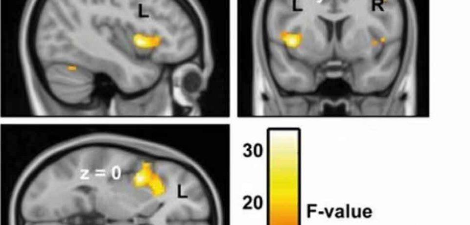 واکنش شدید به صدای جویدن یا «میسوفونیا» با اتصال مغزی فوق حساس ارتباط دارد